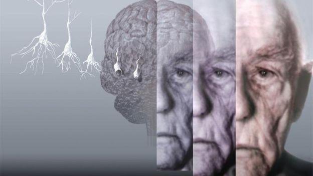 Альцгеймер. Есть ли средство от маразма